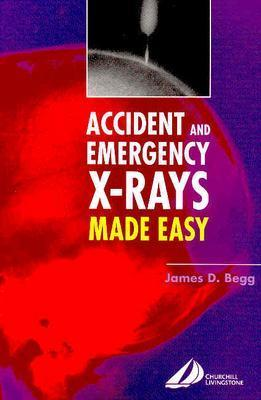 Accident & Emerg Xrays Made Easy - Begg, James D
