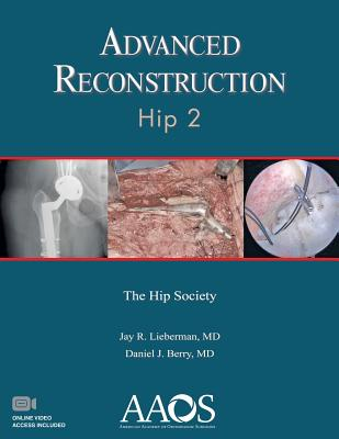 Advanced Reconstruction: Hip 2 - Berry, Daniel J. (Editor), and Lieberman, Jay R. (Editor)