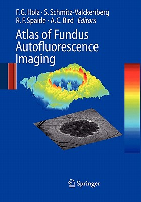 Atlas of Fundus Autofluorescence Imaging - Holz, Frank G. (Editor), and Schmitz-Valckenberg, S. (Editor), and Spaide, Richard F. (Editor)