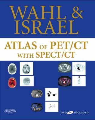 Atlas of PET/CT with SPECT/CT - Wahl, Richard L, MD, and Israel, Ora