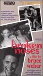 Broken Noses