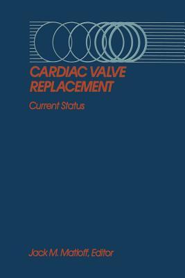 Cardiac Valve Replacement: Current Status - Matloff, Jack M (Editor)