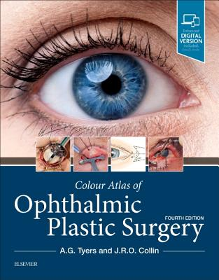 Colour Atlas of Ophthalmic Plastic Surgery - Tyers, Anthony G, and Collin, J R O