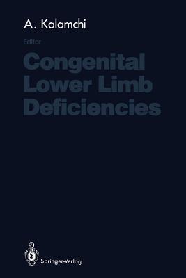 Congenital Lower Limb Deficiencies - Kalamchi, Ali (Editor)