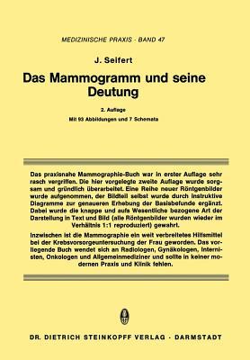 Das Mammogramm Und Seine Deutung - Seifert, Jurgen