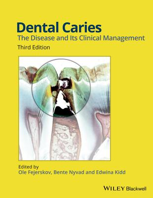 Dental Caries: The Disease and its Clinical Management - Fejerskov, Ole (Editor), and Nyvad, Bente (Editor), and Kidd, Edwina A. M. (Editor)