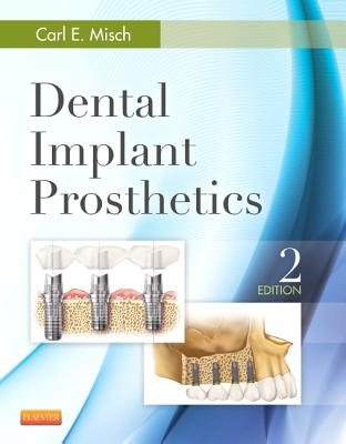 Dental Implant Prosthetics - Misch, Carl E