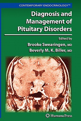 Diagnosis and Management of Pituitary Disorders - Swearingen, Brooke (Editor), and Biller, Beverly M. K. (Editor)