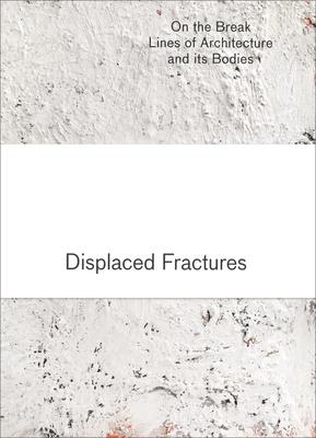Displaced Fractures - Birkholz, Holger, and Harries, Karsten, and Huck, Brigitte