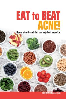 Eat to Beat Acne!: How a Plant-Based Diet Can Help Heal Your Skin. - Matthews, Leigh