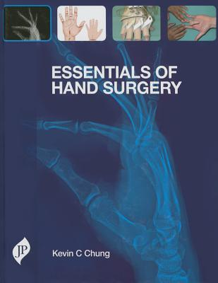 Essentials of Hand Surgery - Chung, Kevin C. (Editor)