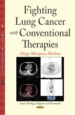 Fighting Lung Cancer with Conventional Therapies - Marquez-Medina, Diego (Editor)