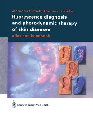 Fluorescence Diagnosis and Photodynamic Therapy of Skin Diseases: Atlas and Handbook - Fritsch, Clemens, and Ruzicka, Thomas