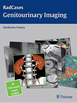 Genitourinary Imaging - Chopra, Shailendra