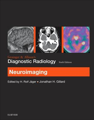 Grainger & Allison's Diagnostic Radiology: Neuroimaging - Gillard, Jonathan H.