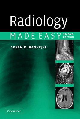 Radiology Made Easy - Banerjee, Arpan