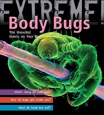 Extreme Science: Body Bugs!: The Uninvited Guests on Your Body - Day, Trevor