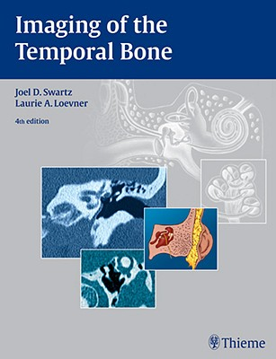 Imaging of the Temporal Bone - Swartz, Joel D, and Loevner, Laurie A