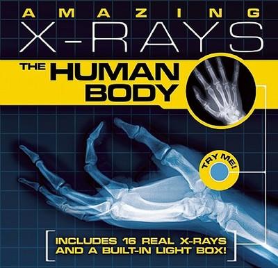 Amazing X-Rays: The Human Body - Beck, Paul