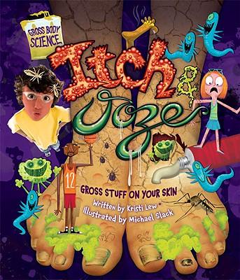 Itch & Ooze: Gross Stuff on Your Skin - Lew, Kristi