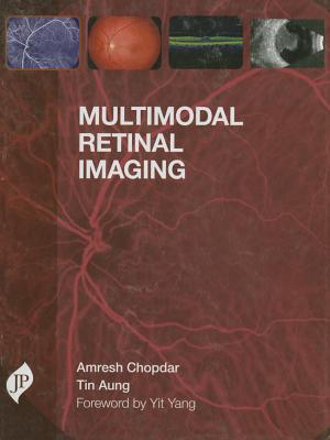 Multimodal Retinal Imaging - Chopdar, Amresh, and Aung, Tin