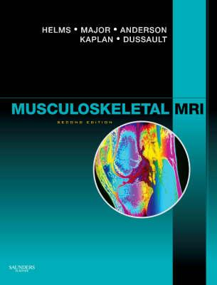 Musculoskeletal MRI - Helms, Clyde A, and Major, Nancy M, and Anderson, Mark W