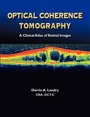 Optical Coherence Tomography a Clinical Atlas of Retinal Images - Landry, Darrin A