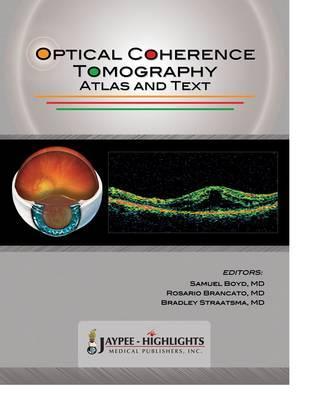 Optical Coherence Tomography - Boyd, Samuel, and Brancato, Rosario, and Straatsma, Bradley