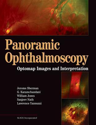 Panoramic Ophthalmoscopy: Optomap Images and Interpretation - Sherman, Jerry, and Karamchandani, Gulshan, and Jones, William, Sir