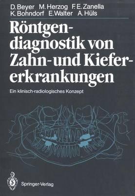Rontgendiagnostik Von Zahn- Und Kiefererkrankungen: Ein Klinisch-Radiologisches Konzept - Beyer, Dieter, and Friedmann, G (Foreword by), and Pape, H -D (Foreword by)