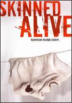 Skinned Alive - James Tucker