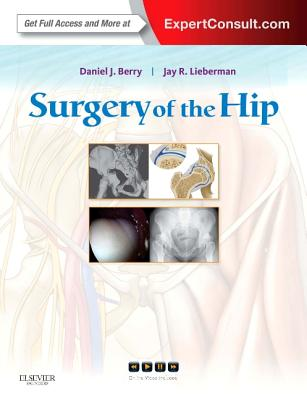Surgery of the Hip: Expert Consult - Online and Print - Berry, Daniel