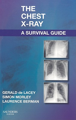 The Chest X-Ray: A Survival Guide - de Lacey, Gerald, and Morley, Simon, and Berman, Laurence, MB, Bs, Frcp