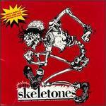 The Skeletones