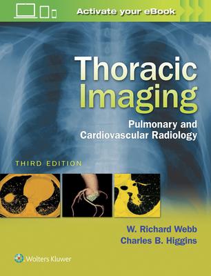 Thoracic Imaging: Pulmonary and Cardiovascular Radiology - Webb, W Richard, M.D.