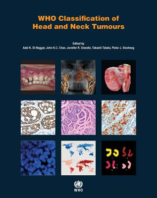 WHO classification of head and neck tumours - International Agency for Research on Cancer